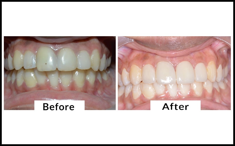 dentist showing the patient dental cleaning service done in coimbatore