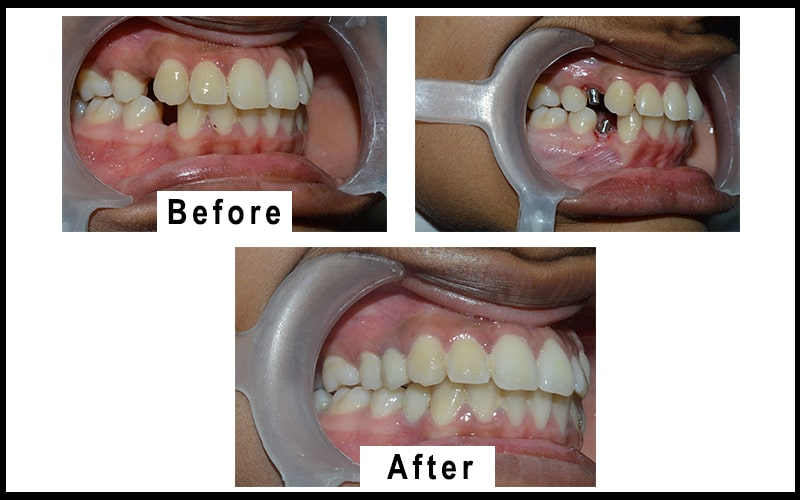 A patient picture before & after of dental implant located in coimbatore