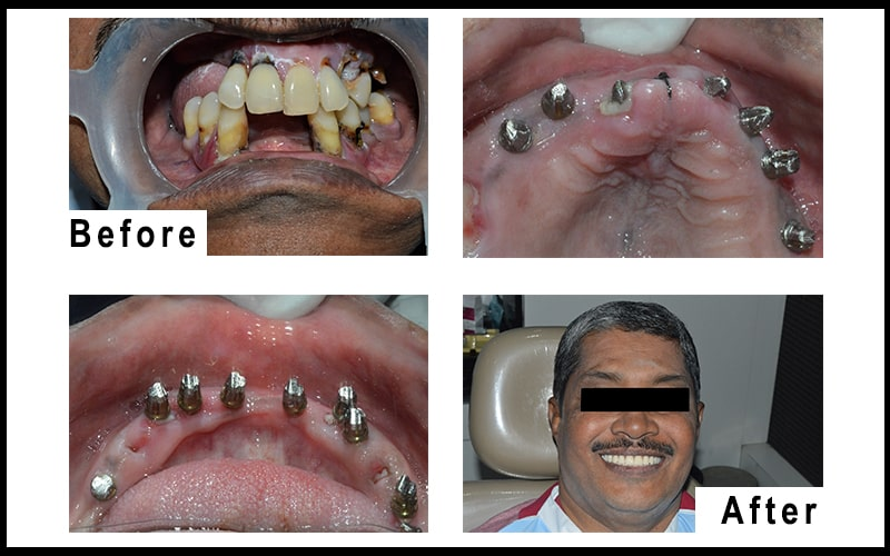 patient who undergoes the full mouth dental implant at low cost in coimbatore