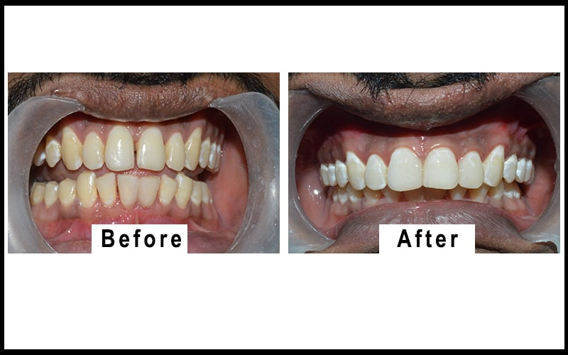 a patient undergoes teeth whitening treatment in coimbatore