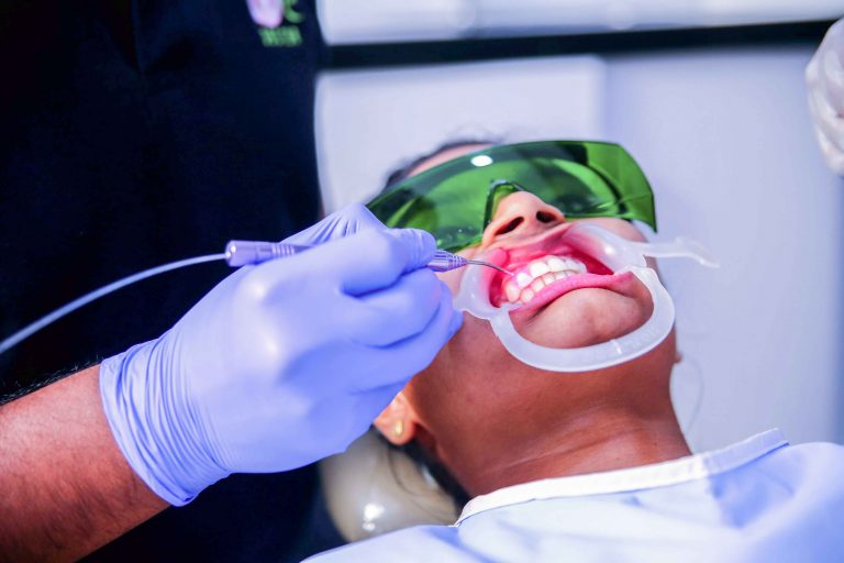 Laser Dentistry in Coimbatore