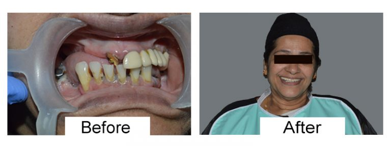Dental implant cost in Coimbatore