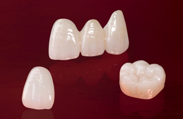 Dental Crowns in Coimbatore