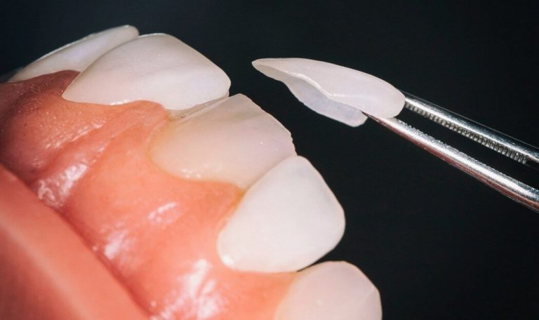 Dental Veneers treatment in Coimbatore