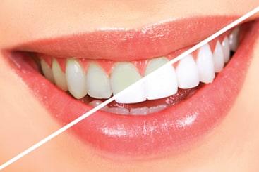 teeth whitening in coimbatore