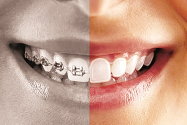 Teeth braces cost in Coimbatore